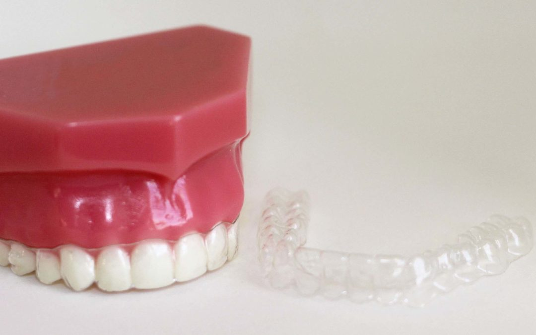 Direct to Consumer Teeth Aligners – Buyer Beware!