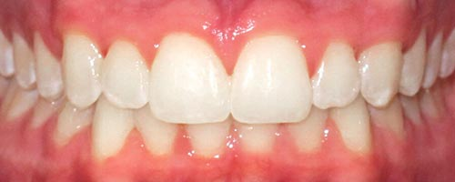 Invisalign with lingual braces - Alexander Teeth After