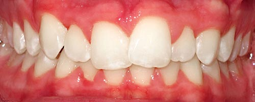 Invisalign with lingual braces - Alexander Teeth Before