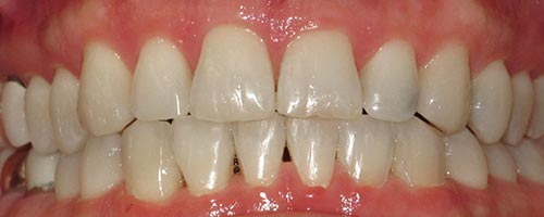 Adult Braces To Correct A Bite - Daniel Teeth After