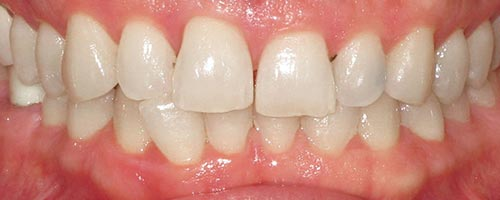 Adult Braces To Correct A Bite - Daniel Teeth Before
