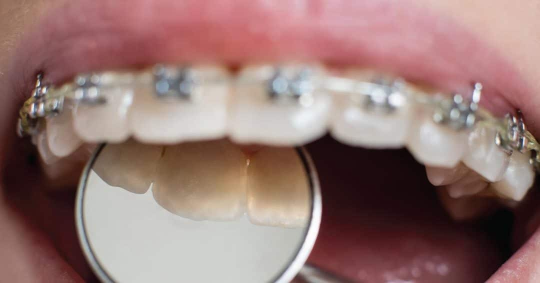 What Can I Expect When I Am Wearing Braces?