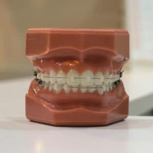 Dental Insurance Providers for Braces