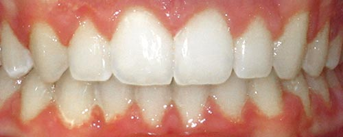 fix impacted tooth with braces