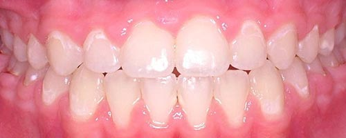 lingual braces closing spaces