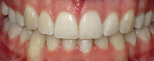 lingual braces eliminating crowding
