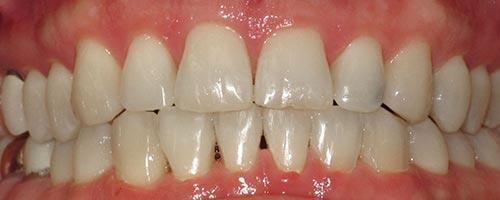 adult braces correct a bite