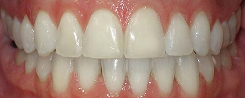 adult braces for a wider smile