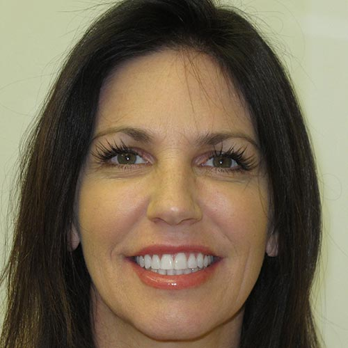 adult braces a wider smile