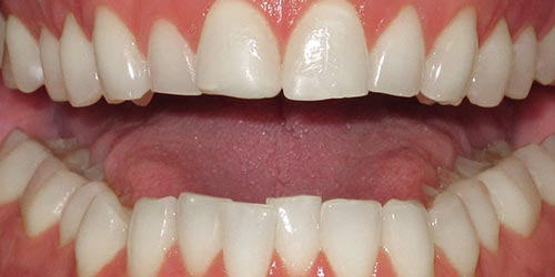 adult braces to fix alignment