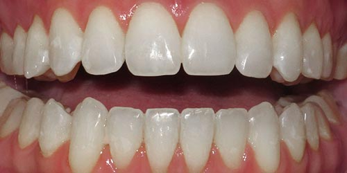 adult braces improving aesthetic alignment