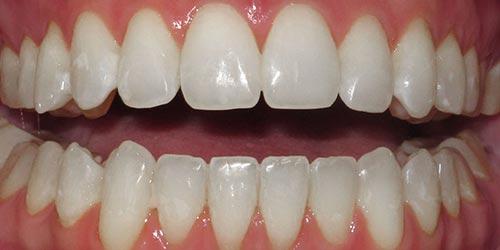 adult braces to improve bite