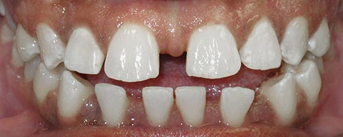 close all spaces with braces