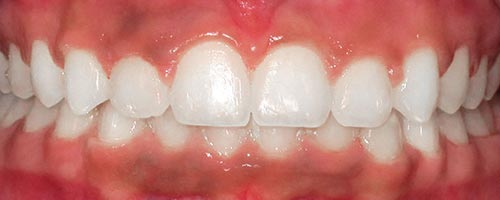 fix severe overbite with braces