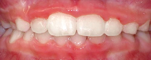 treatment for underbite with braces