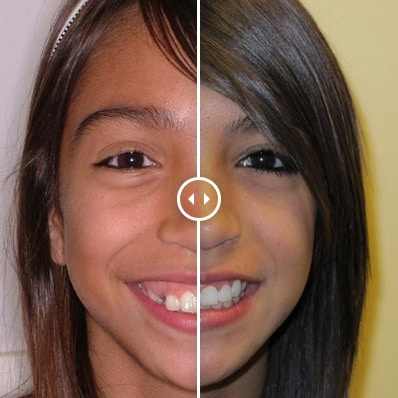 orthodontic before and afters