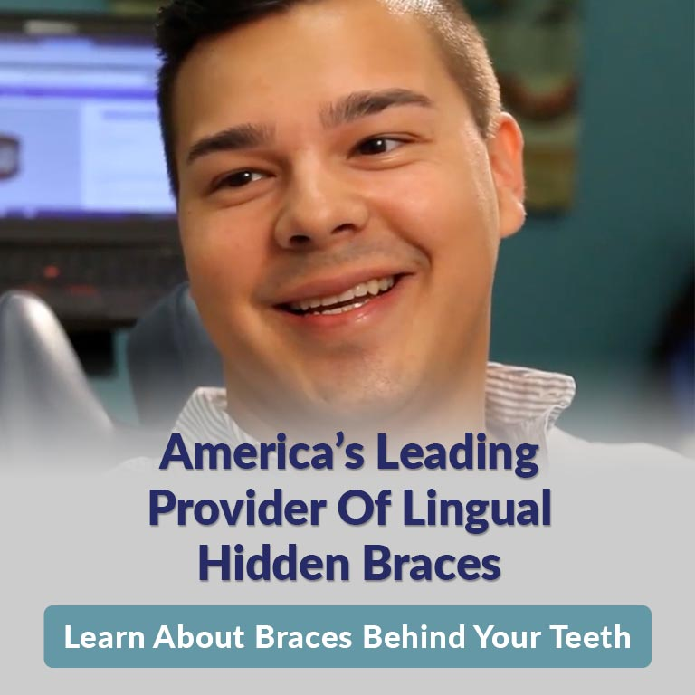 learn about lingual braces
